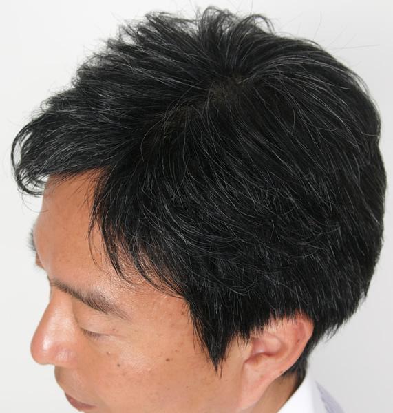男性用医療用かつら白髪入りもあります