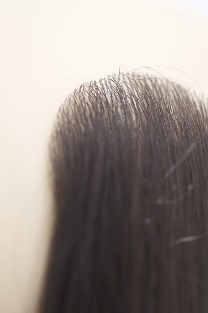 シール式の人工皮膚に植えてある人毛の貼るかつら