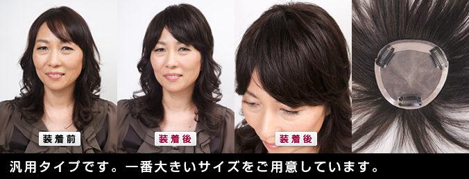 人毛オーダーメイドヘアピース 自毛で作る