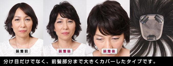 分け目から前髪部までカバーするヘアピース 自毛で作るもOK