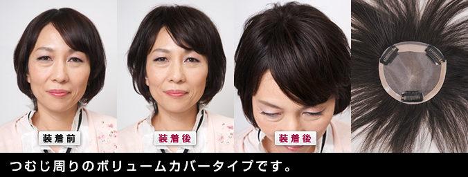 つむじをカバーできるヘアピース 自毛で作ることもできます