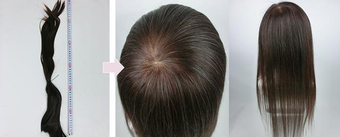 娘の毛髪で父親の医療用かつら 自毛で作るオーダーメイドかつら 地毛で作成したヘアピース